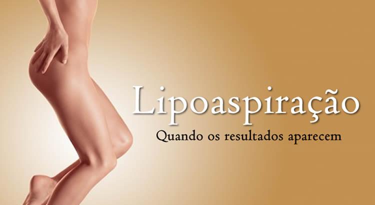 Lipoaspiração SJC