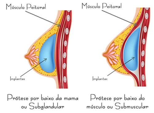 posicao-implantes